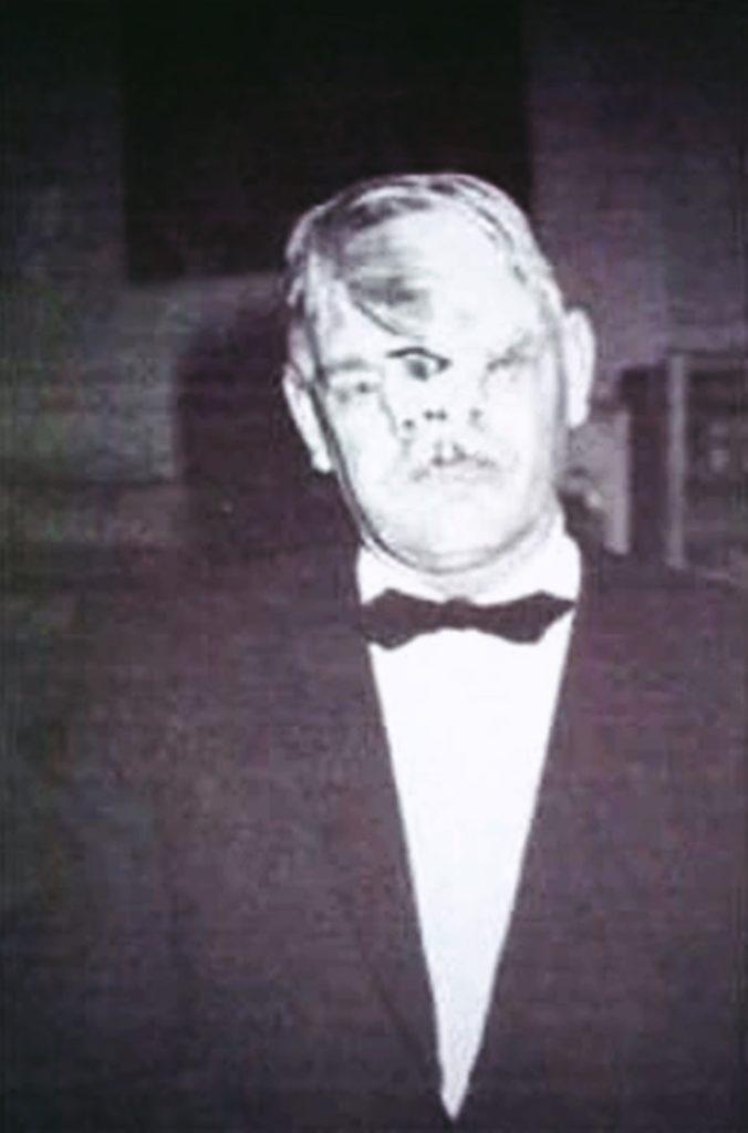 Bill-Durks-Mann-mit-3-Augen-2-Nasen-Freak-Show-Artist-Portrait-Foto
